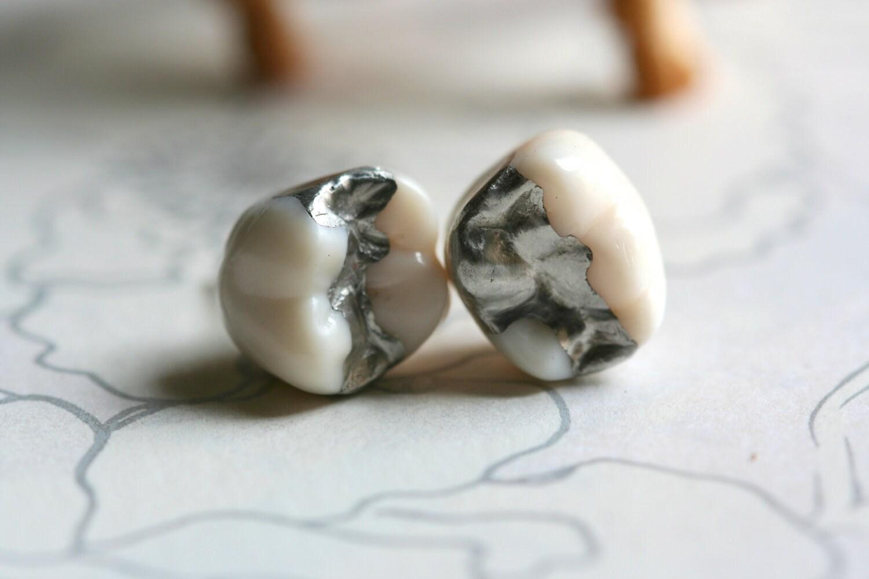 Amalgam tooth earrings, dental oddity